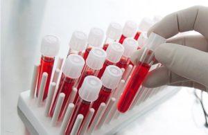 Από Έλληνα στις ΗΠΑ σύστημα ταυτοποίησης ερυθρών αιμοσφαιρίων
